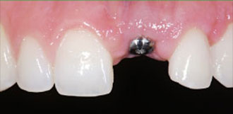 Dental Implant Figure 1