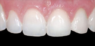 Dental Implant Figure 3