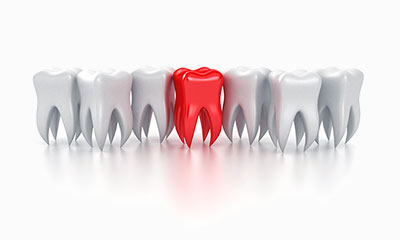Why is a root canal better than an extraction?